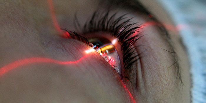 обследование перед лазерной коррекцией зрения